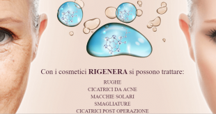 rigenera microneedling
